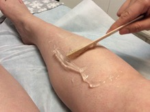 SHR Laser Hair Removal Procedure Step2